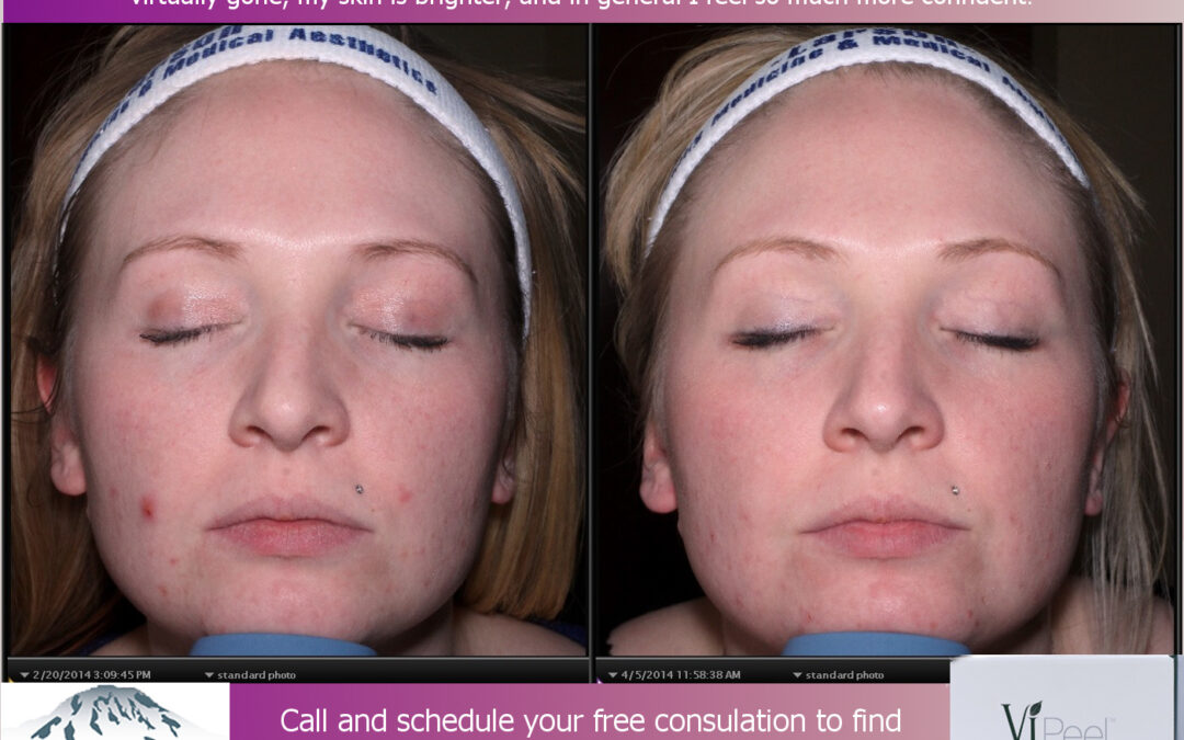 ViPeel™ Delivers Real Results!