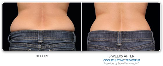 CoolSculpting, VanNatta, Burien, WA, 98166, Larson Medical Aesthetics