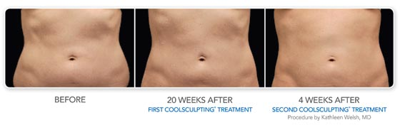 CoolSculpting,  Welsh,  Burien, WA, 98166, Larson Medical Aesthetics