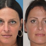 Create Symmetry and Relax Wrinkle-Creating Muscles with Botox Cosmetic