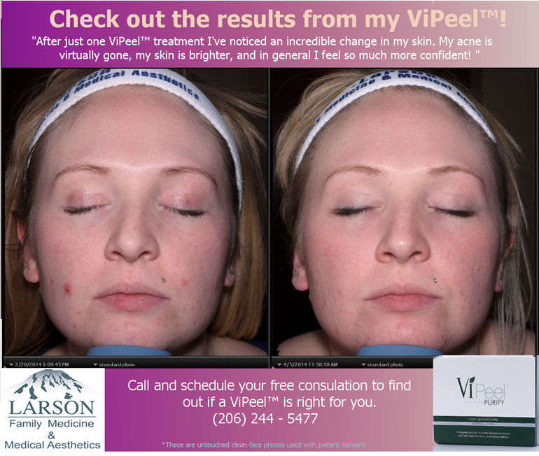 Vipeel before after, Larson Medical Aesthetics, Burien, WA, 98166, Larson Medical Aesthetics, Burien, WA, 98166