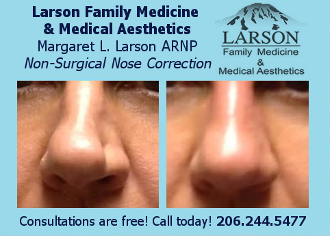 Non Surgical Nose Correction