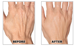 hands before after Best