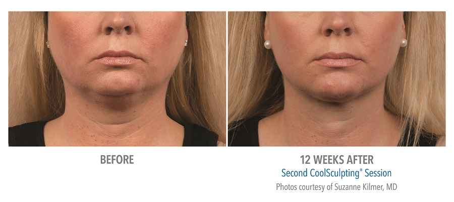 coolscuplting fat removal - chin - before-after