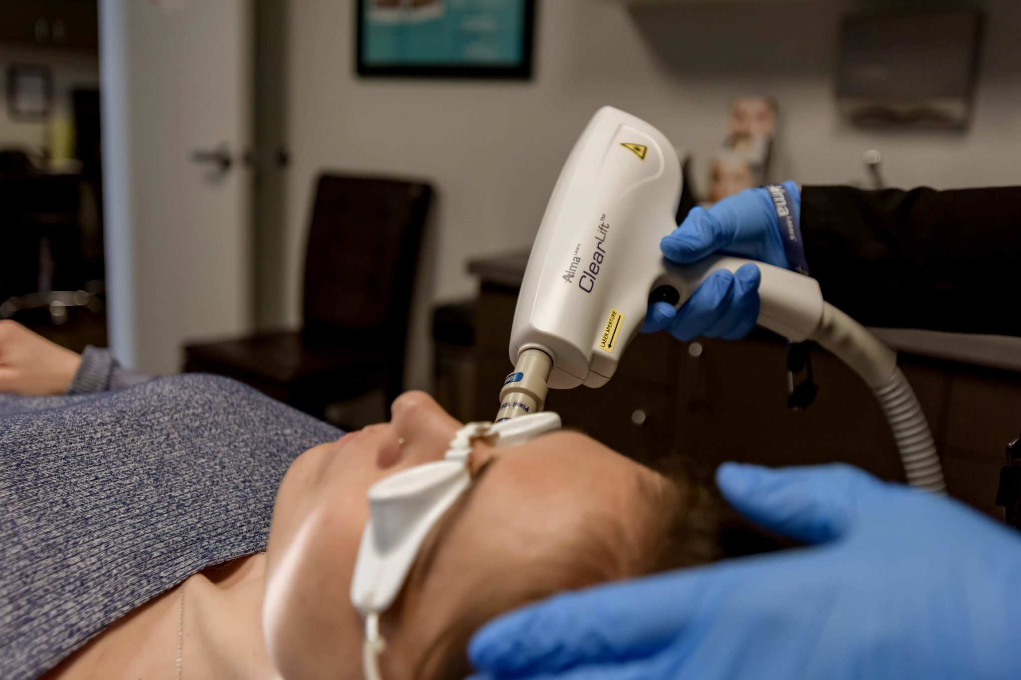 Laser Skin Treatments Tacoma