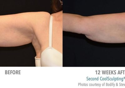 Coolsculpting Session Under Arm