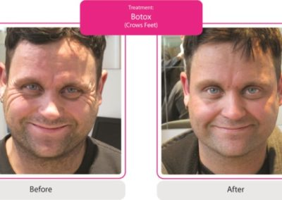 Before and After Pic Botox, Forehead, Frown & Crows