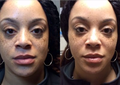 Cecili-Before-after-under-eyes-and-lips