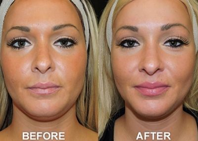 KYBELLA-Before-and-After-Photo
