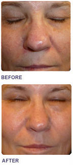 Skin Rejuvenation Stacked