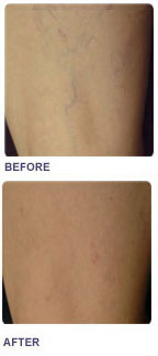 Treatment for Leg Veins
