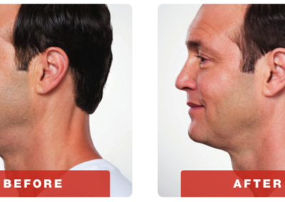 kybella-before-adn-after