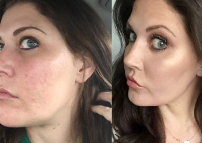 utah before-and-after-co2-laser-resurfacing