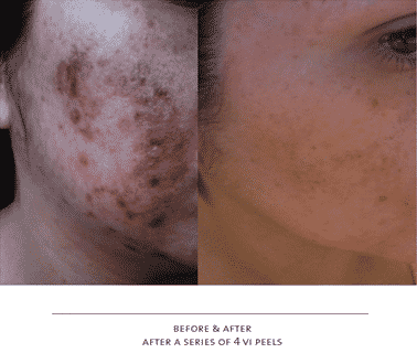 ViPEEL results