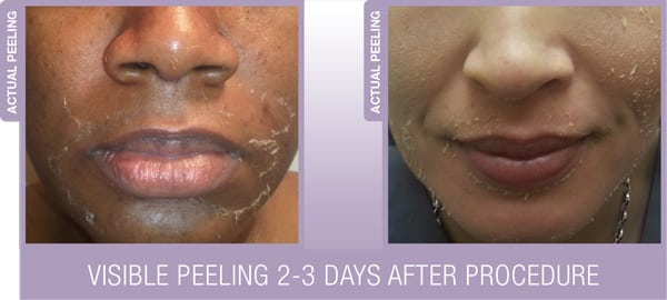 Results ViPEEL