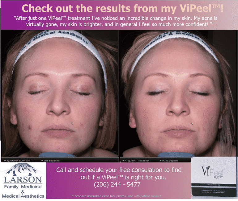 Results from ViPEEL