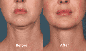 KYBELLA-Patient-Before-and-After-Front-view