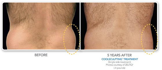 CoolSculpting Procedures