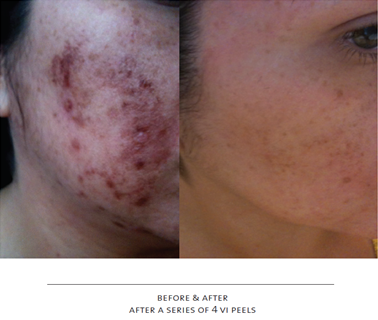 before-after vipeel