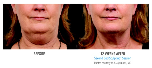 before and after image of coolsculpting